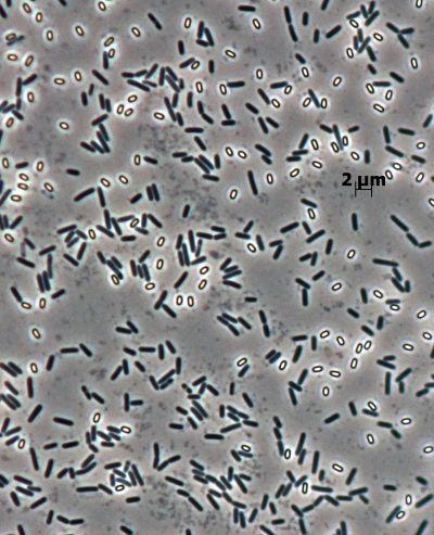 BacDive - The Bacterial Diversity Metadatabase : Bacillus pumilus ...
